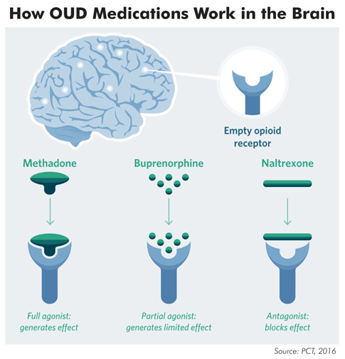 MAT For Opioid Use Disorder